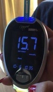 spike in blood glucose UK