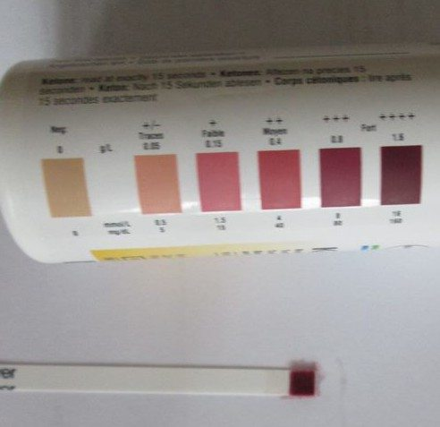 What does it mean when a diabetic has ketones in his urine?